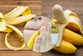 Dùng vỏ quả chuối trị mụn trứng cá, làm mờ nếp nhăn