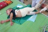 Ngã vào nồi măng đang nấu, bé 2 tuổi bị bỏng nặng bộ phận sinh dục