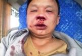 Một tài xế đang chạy xe bất ngờ bị côn đồ chặn đánh đến nhập viện!