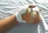 Nam thanh niên bị vỡ nát bàn tay do pháo nổ