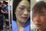 Nữ phụ xe buýt bị 4 thanh niên hành hung