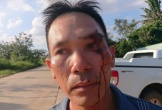 Vừa tố cáo cán bộ địa chính nhận hối lộ, một người dân bị đánh rách mặt