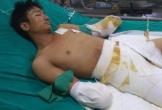 Gia cảnh bi đát của người đàn ông bị điện giật cắt cụt 2 tay