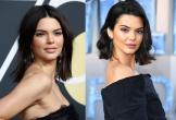 Bí quyết quét sạch mụn của siêu mẫu thế giới Kendall Jenner