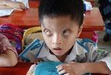 Nghị lực sống phi thường và khát vọng đến trường của cậu bé 6 tuổi có đôi mắt chỉ nhìn thấy 2% ánh sáng