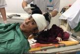Nam thanh niên bị chém đứt lìa bàn tay trái và ngã gục trong đêm
