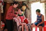 Cùng quẫn cảnh vợ chồng nghèo nuôi hai con teo não