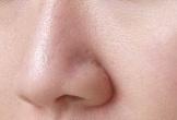 Mặt nạ giúp thu nhỏ lỗ chân lông