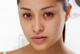 Tuyệt chiêu giúp bạn chữa thâm mắt đơn giản