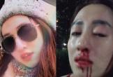 Vợ cực xinh bị chồng đánh gãy mũi trước mặt con, ly thân vẫn như 'địa ngục'