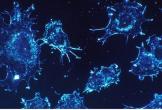 Phát hiện yếu tố ngay trong cơ thể khiến tế bào ung thư