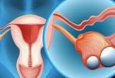 8 cách giảm nguy cơ ung thư buồng trứng