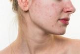 Thủ phạm khiến da nổi mụn, sần sùi vào dịp Tết