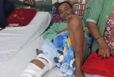 Người đàn ông bị tai nạn không có tiền chữa trị