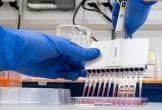 Xác định 3 loại thuốc dùng cho bệnh nhân HIV có thể điều trị virus corona