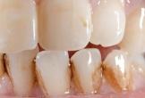 Lý do răng xỉn màu không nhiều người biết