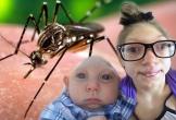 Virus Zika xuất hiện ở Đà Nẵng nguy hiểm thế nào, cơ chế lây nhiễm ra sao?