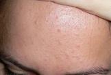 Mụn ẩn dưới da: Chữa trị không khó