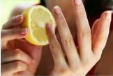 Cách loại bỏ những vết chai sần ở tay chân