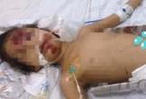 3 bố con bị thương nặng cần sự giúp đỡ