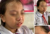 Vụ cô giáo tát học sinh lớp 4 tại Hà Giang: Phạt 7,7 triệu đồng, đình chỉ giảng dạy 3 tháng