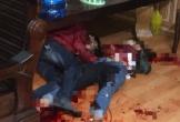 Nam thanh niên dùng dao đâm bạn gái tử vong rồi tự đâm mình