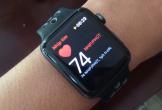 Apple Watch có thể theo dõi tình trạng tim mạch của bệnh nhân