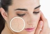 Nếu thấy da khô cần thay đổi ngay thói quen này